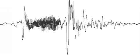 Electrical Analog Waveform